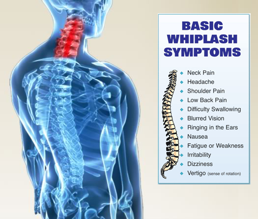 Basic Whiplash symptoms that you may experience as a result of a car accident