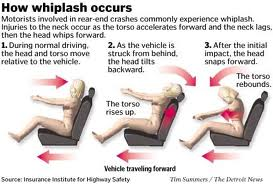 How Whiplash occurs as a result of a personal injury